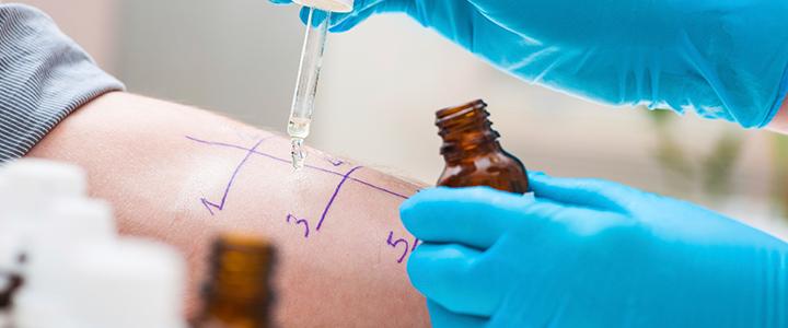 alergologia-clinicamarazuela