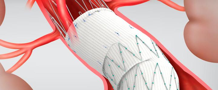angiologia-cirugia-vascular-clinica-marazuela