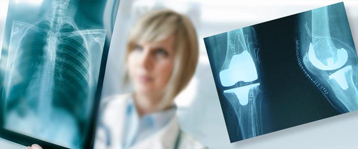 traumatologia-cirugia-ortopedica-clinica-marazuela